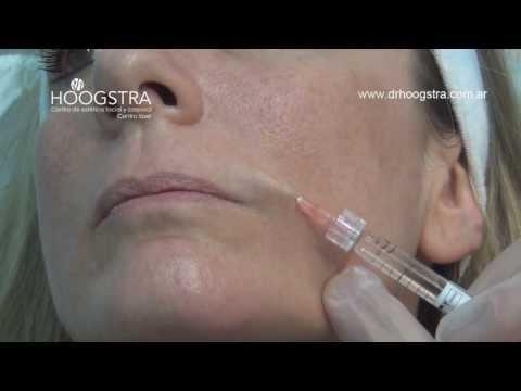 Relleno de Labios y Surcos Nasolabiales con Ácido Hialurónico (13018)