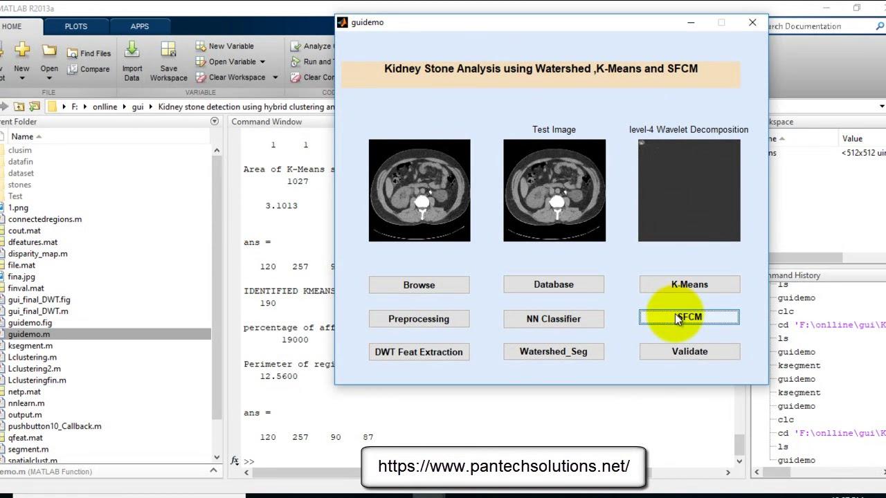 Kidney stone analysis using Matlab
