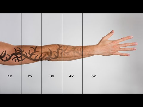 Tattoo Removal Maryland - Tattoo Removal In Maryland - YouTube