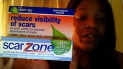 hqdefault - Scar Zone Acne Cream Uk