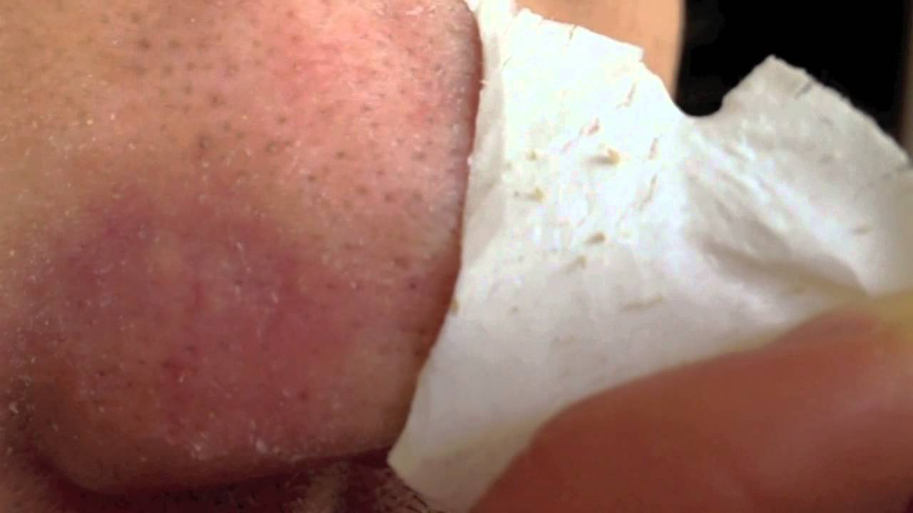 Blackhead removal w/ Biore pore strip - Part 2 - YouTube