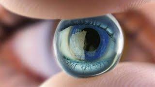 Как определить болезни по глазам? | Офтальмолог Дементьев