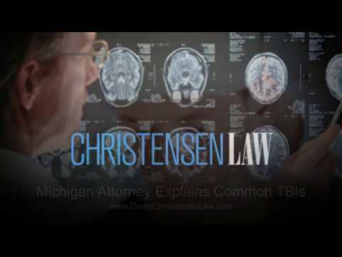 Michigan Attorney Explains Common TBIs