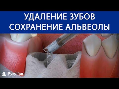 Как выдернуть коренной зуб в домашних условиях без боли самому себе