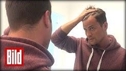Rocco Stark bekommt neue Haare - Haartransplantation