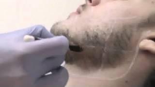 Epilium: Лазерная эпиляция области лица у мужчин(Лазерная эпиляция