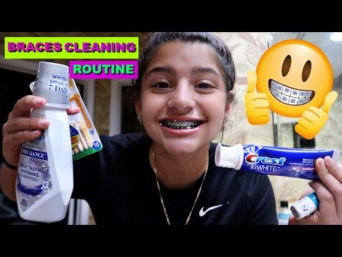 BRACES CLEANING ROUTINE :TIPS&TRICKS :KEILLY ALONSO