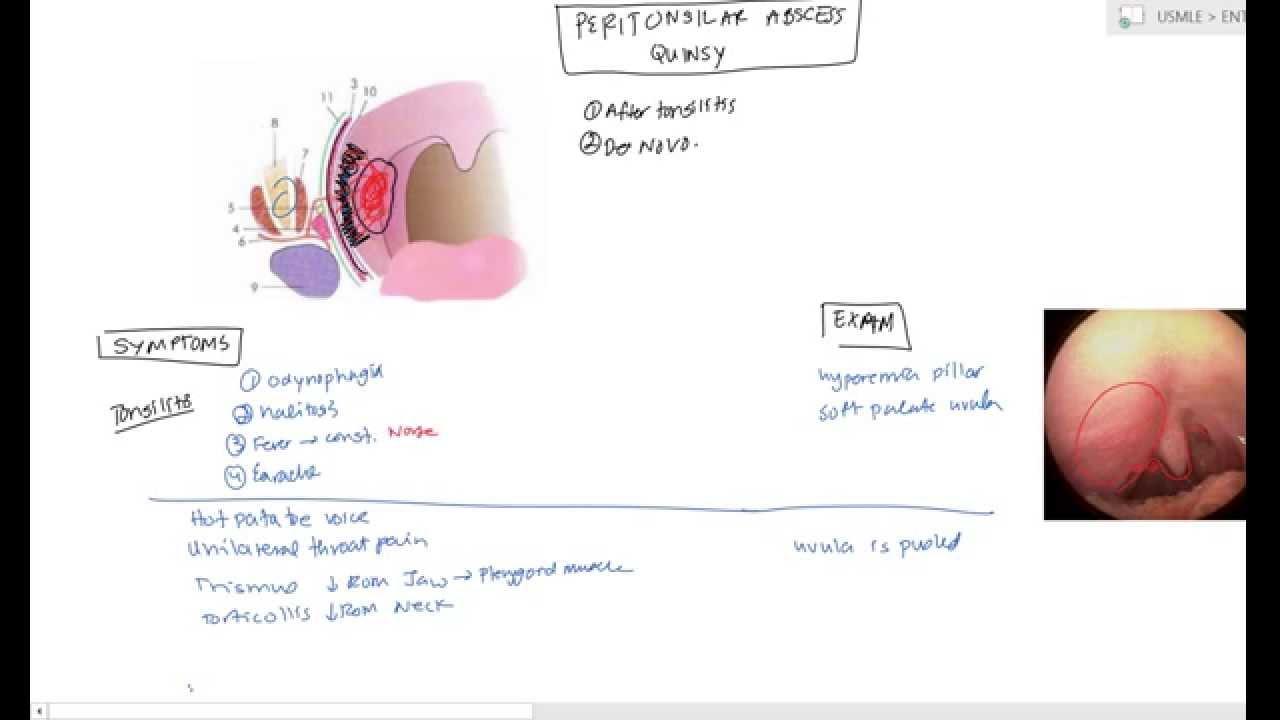 diagram of absces [ 1280 x 720 Pixel ]