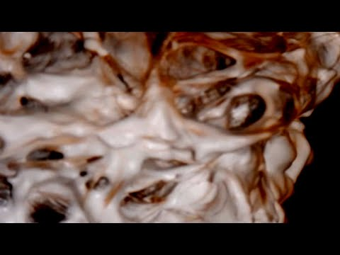 SHOCKING TRUTH MORGELLONS 11 MONTH PHOTO JOURNAL