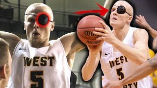 This College All American Plays WITH ONE EYE! 20+PPG W/ An EYEPATCH