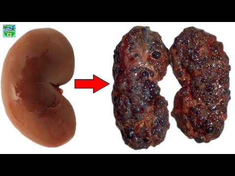 8 Bad Habits That Can Damage Your Kidneys and You Do Them Every Day!