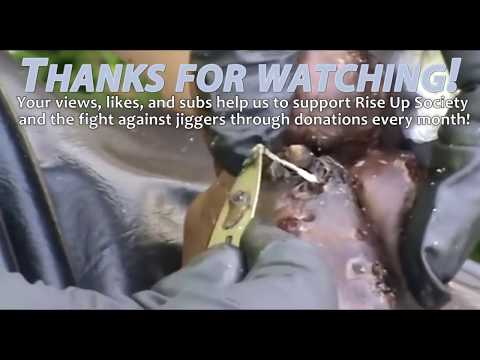 Dominic's Toes - Full of Jiggers - Full Treatment