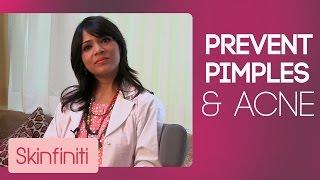 How To Prevent Acne & Pimples    Skincare    Skinfiniti With Dr.Jaishree Sharad
