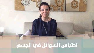 احتباس السوائل في الجسم - الدكتورة ربى مشربش - تغذية