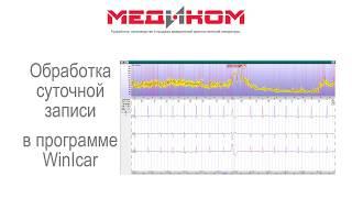 Видеоурок об основных этапах анализа ЭКГ в программе WinIcar