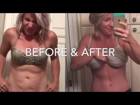 3 week Tummy Tuck Recovery Update - YouTube