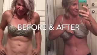 3 week Tummy Tuck Recovery Update