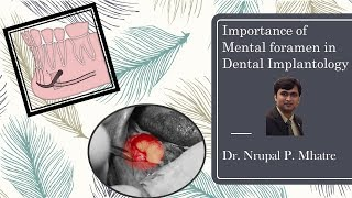 Importance of Mental foramen and How to expose it for diagnostic purpose