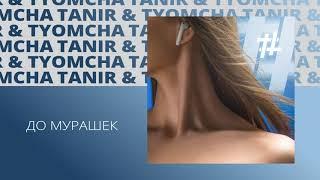 Tanir & Tyomcha - До мурашек cмотреть видео онлайн бесплатно в высоком качестве - HDVIDEO
