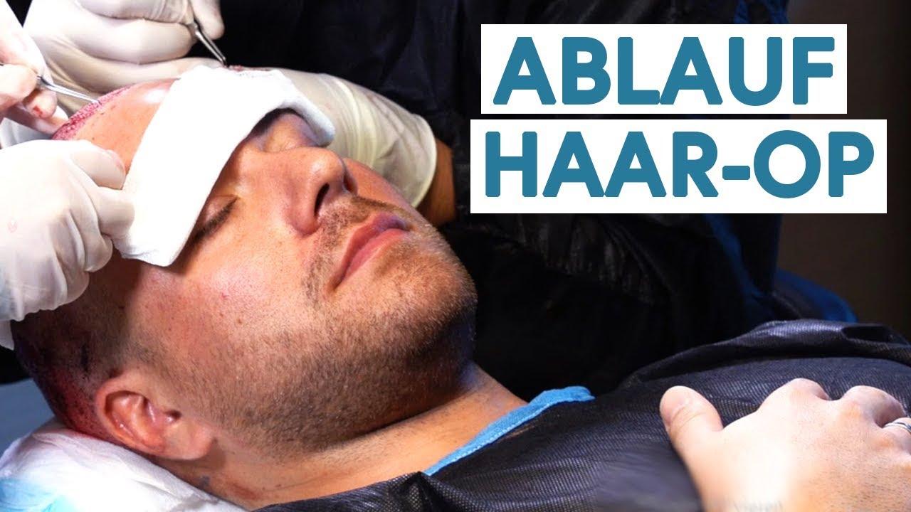 Der Komplette Ablauf einer Haartransplantation OP! (Türkei