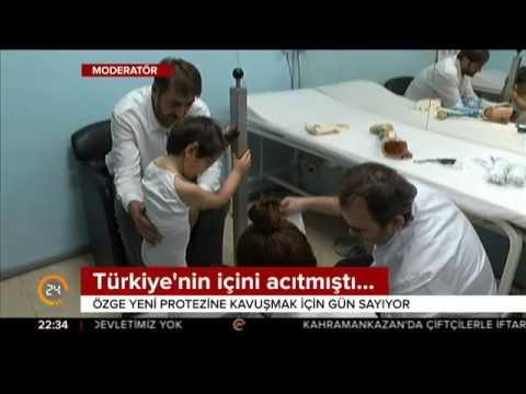 Cumhurbaşkanı Erdoğan'ın da desteğini esirgemediği Özge yeni protezine kavuşacak
