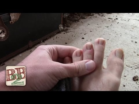 Barefoot Winter Walk Gave Me Chilblains (Frostbite Light)   Back to Basics Show