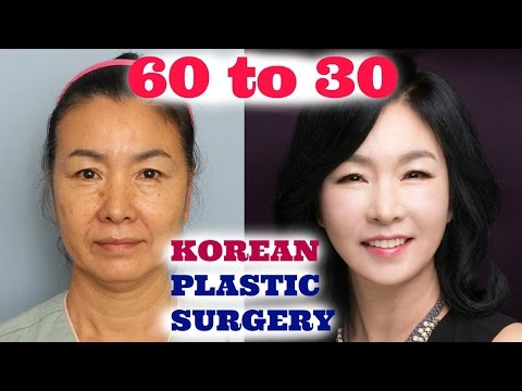MY MOM DID PLASTIC SURGERY IN KOREA! | Sunnydahye