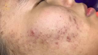#61 #loannguyen_dispel worries about acne_spa loan nguyen