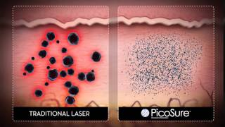Picosure Laser Tattoo Removal at Carolina Laser and Cosmetic Center Thumbnail