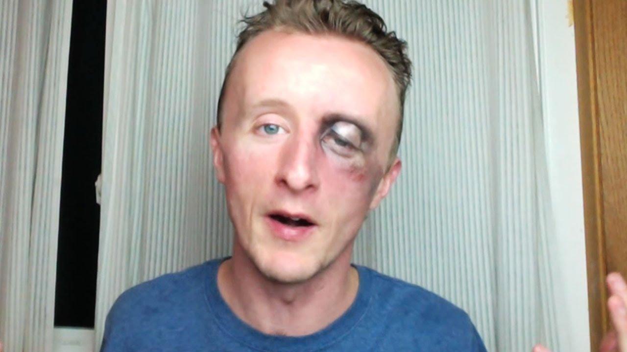 Easy Swollen Black Eye With Halloween Makeup - YouTube