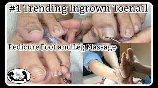 👣 #1 Trending Ingrown Toenail Cleaning Pedicure Foot Massage and Nail Shape Correction 👣