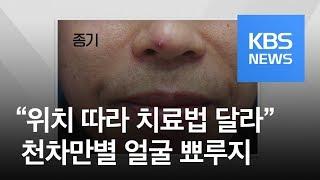 [5분 건강 톡톡] 얼굴 뾰루지도 천차만별…코밑 함부로…
