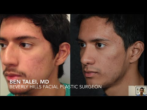 Beverly Hills Rhinoplasty Nose Job with Septoplasty for cosmetic and breathing improvement