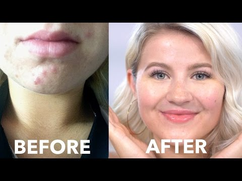 HOW TO: Cure Acne Naturally | Fast & Cheap | Milabu