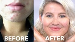 hqdefault - How To Cure Acne Click Here