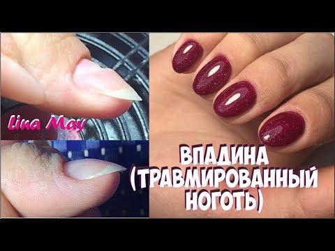 Почему появляются вмятины на ногтях