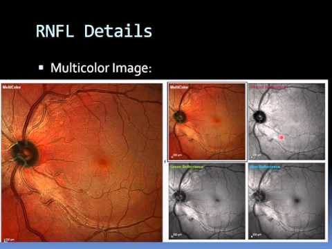 SPECTRALIS MultiColor - Imaging in Clinical Use