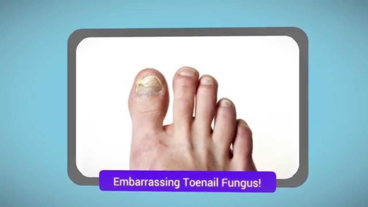 Best Toenail Fungus Treatment - YouTube