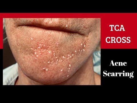 Dr. Weiner's Technique For Addressing TCA Cross For Acne Scarring