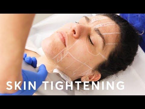 Hifu Skin Tightening   Pulse Light Clinic London