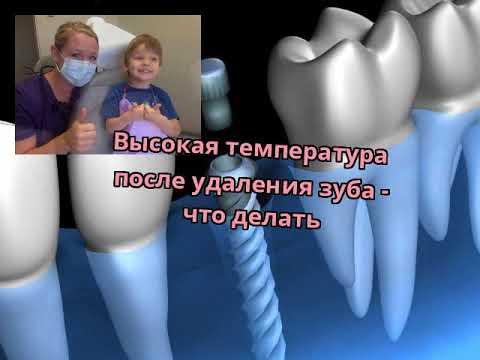 Болит десна после удаления зуба и температура