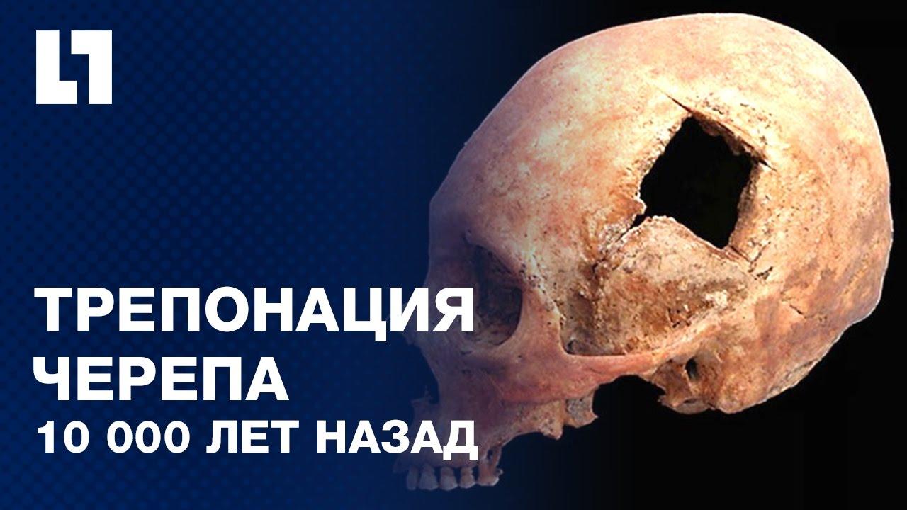 ШОК! Ритуальная трепанация черепа