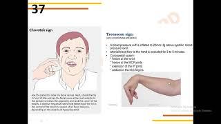 Geng Sehat harus tahu bahwa bahaya penyakit hipertiroid bisa memengaruhi saraf, lho. Yuk tonton vide.
