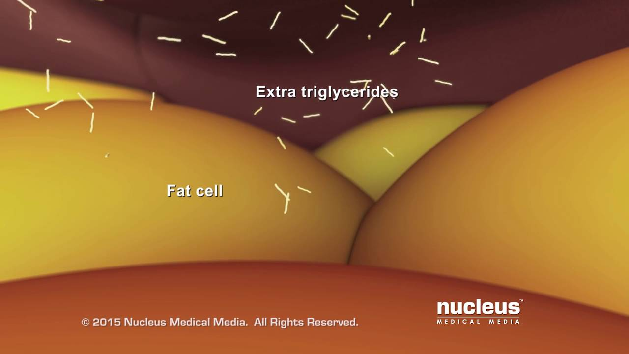 Triglycerides: what is it
