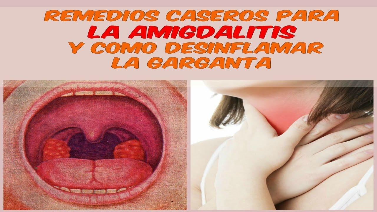 remedios caseros para la amigdalitis y como desinflamar la garganta