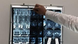 мРТ или КТ позвоночника - что делать, что выбрать?