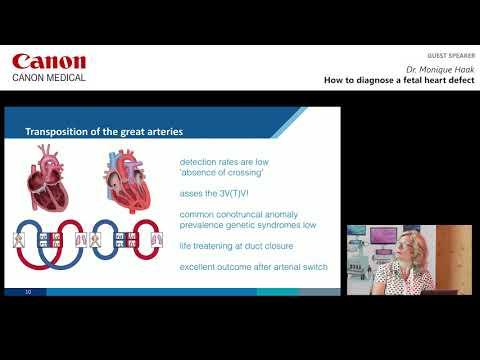 Dr. Monique Haak - How to Diagnose a Fetal Heart Defect