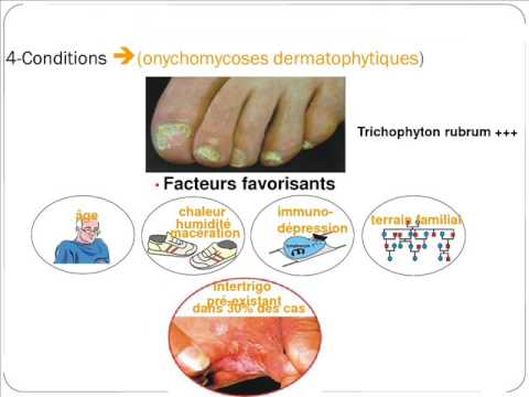 PARAZITOLOGIE dermatophytes et dermatophyties