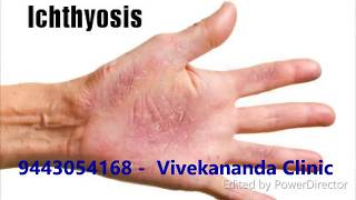 Ichthyosis Fishy Dry Skin  Homeopathy Treatment Chennai
