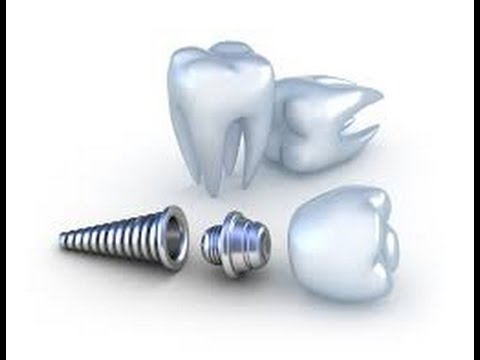 Global Dental Market Analysis & Forecast